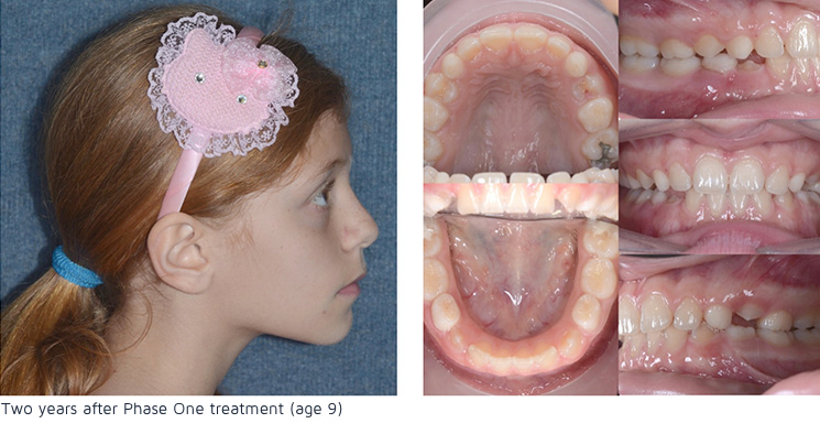Two years after phase 1 treatment (age 9)